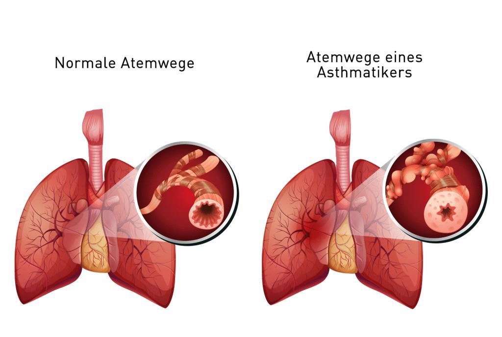 Welt-Asthma-Tag-2021-Bosch-Vivatmo-Me-Asthma-Aktiv-mit-Vivatmo-BoschVivatmo-Lungenerkrankung-Stuttgart